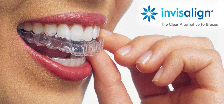 dentista fiocchi invisalign italyengine
